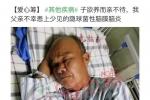 大家好,本人爸爸李松秋因不幸确诊隐球菌性脑膜脑炎,